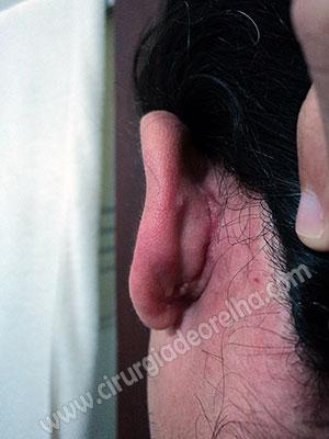 cicatriz-otoplastia