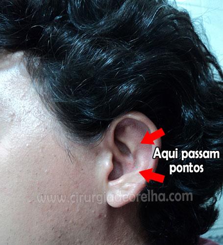 pontos-da-otoplastia