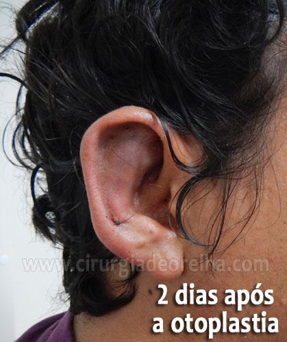 otoplastia-inchaco-2-dias