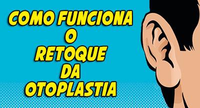 retoque-otoplastia-como-funciona