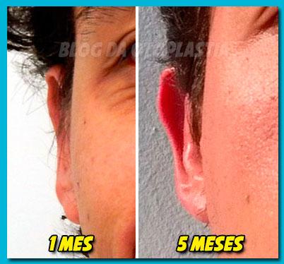 otoplastia-1-5-meses