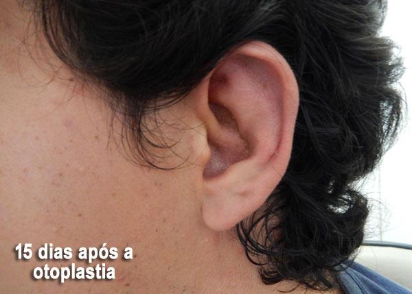 otoplastia-pos-operatorio-15-dias
