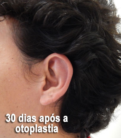 otoplastia-pos-operatorio-30-dias