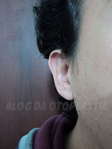 otoplastia-tres-meses-orelha-direita