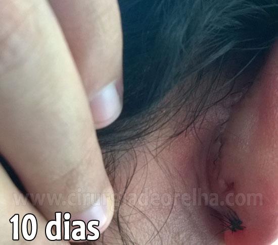 otoplastia-cicatriz-10-dias