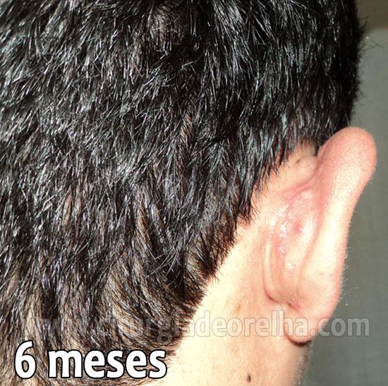 otoplastia-cicatriz-6-meses