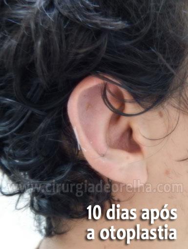 otoplastia-inchaco-10-dias
