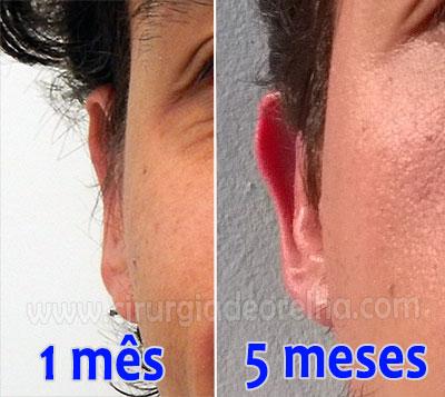 orelhas-retoque-otoplastia