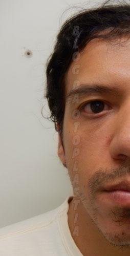 otoplastia-orelhas-coladas10-dias