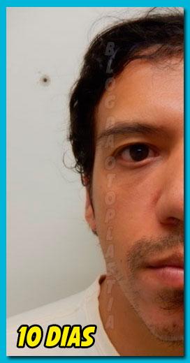 otoplastia-10-dias