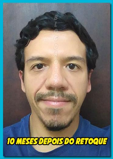 retoque-otoplastia-10-meses